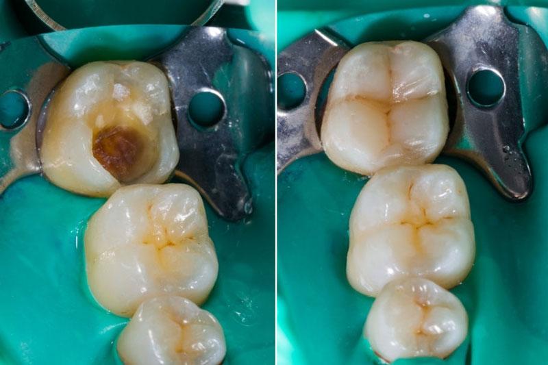 Nên hàn răng cho bé để ngăn ngừa biến chứng