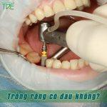 Trồng răng có đau không? Nên trồng răng với phương pháp nào thì hiệu quả?