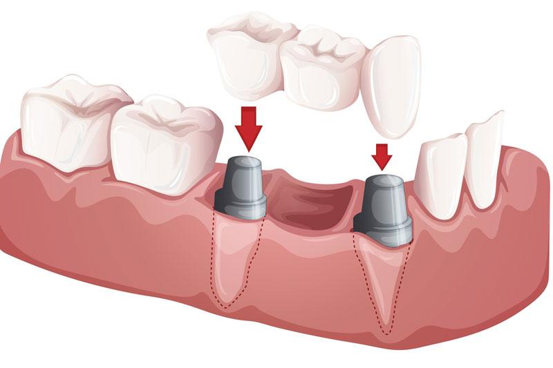 Cầu răng sứ phục hình răng tức thì