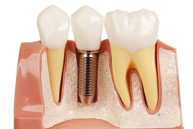 Trồng răng Implant - phương pháp trồng răng hiện đại, nhanh chóng