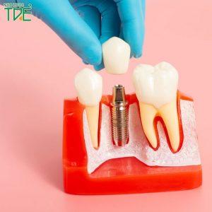 Trồng răng Implant Hàn Quốc có tốt không?