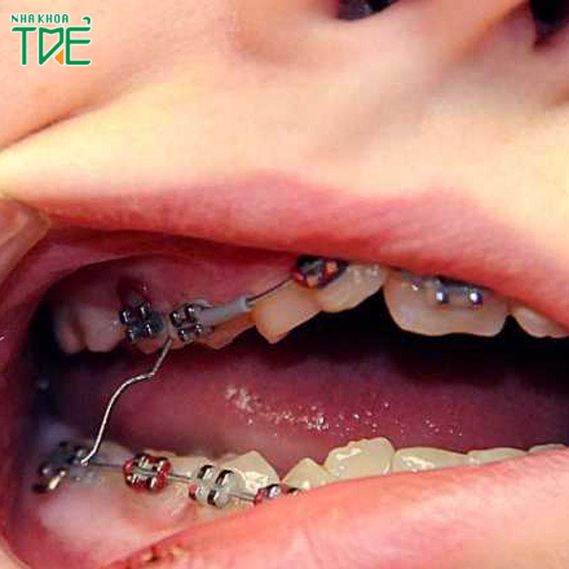 Sự cố tuột dây cung khi niềng răng mắc cài phải xử lý như thế nào?