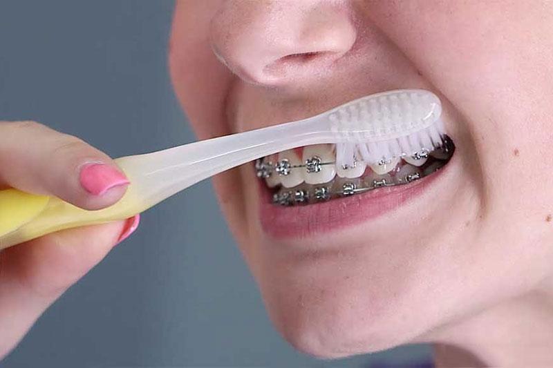 Chải răng sai cách có thể làm tuột dây cung khi niềng