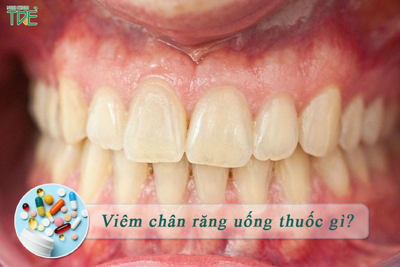 Điều trị viêm chân răng uống thuốc gì thì hiệu quả?