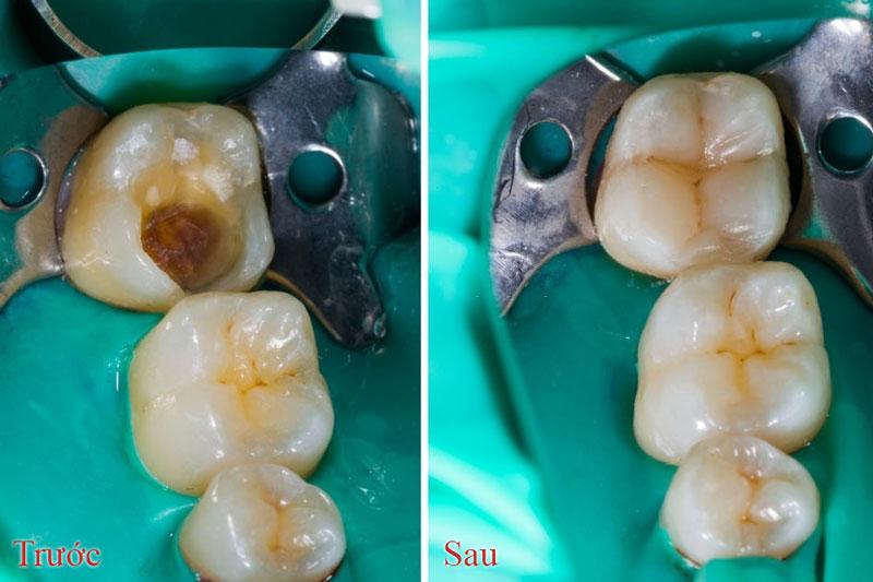 Điều trị răng sâu bằng phương pháp hàn trám