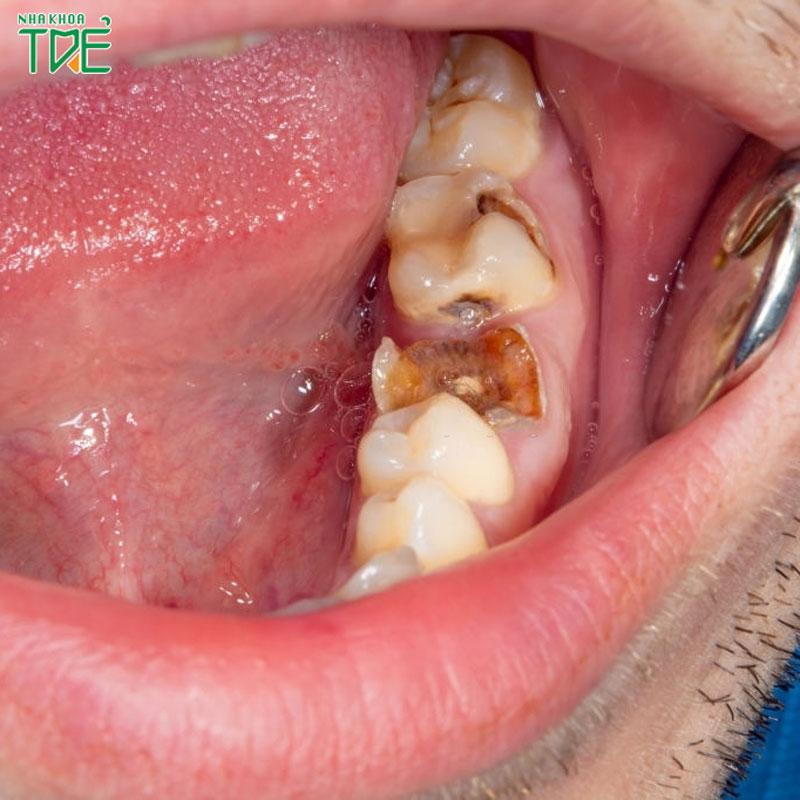 4 giai đoạn sâu răng: Nguyên nhân và cách điều trị bệnh lý