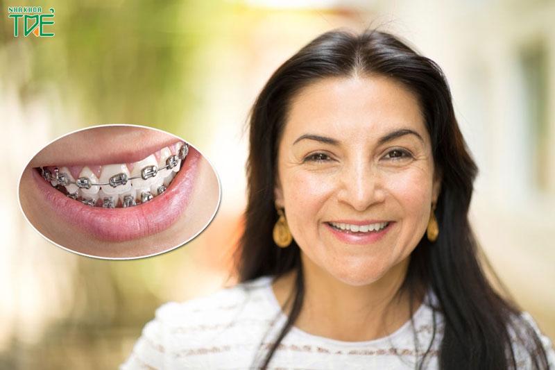 40 tuổi niềng răng được không?