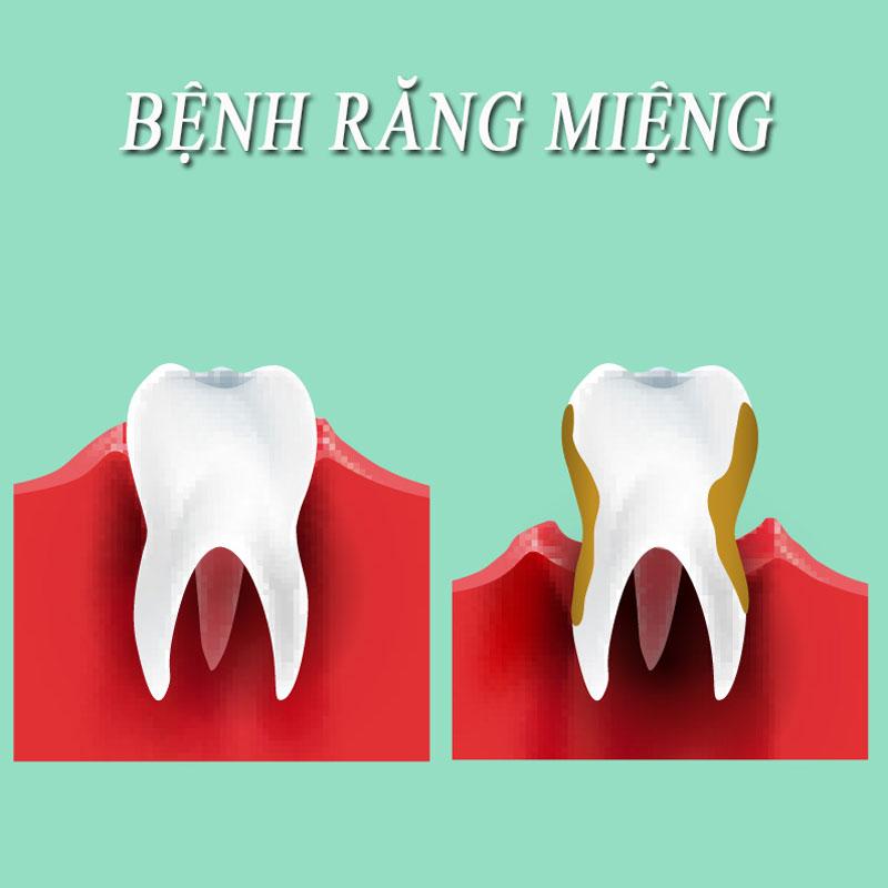 5 bệnh lý răng miệng hay gặp nhất