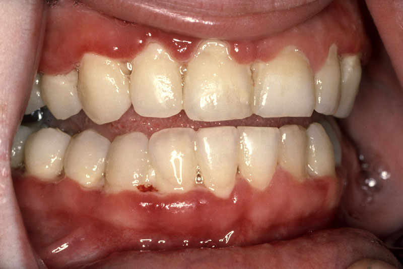 Viêm nướu có nguy cơ khiến răng lung lay, thậm chí là mất răng