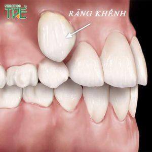 Bé mọc răng khểnh có ảnh hưởng gì
