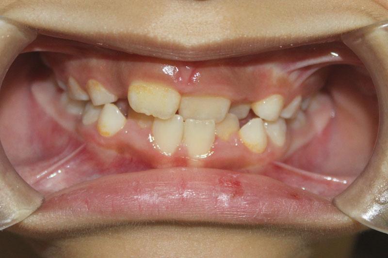 Răng sữa mất sớm sẽ khiến răng mọc lệch lạc, khấp khểnh