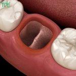 Hướng dẫn chăm sóc và vệ sinh răng miệng sau nhổ răng