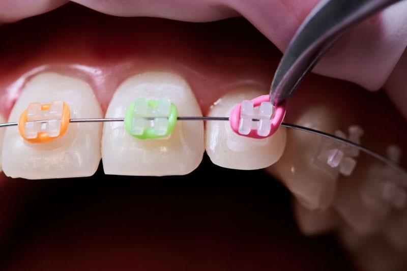 Niềng răng mắc cài gắn khí cụ cố định trên răng