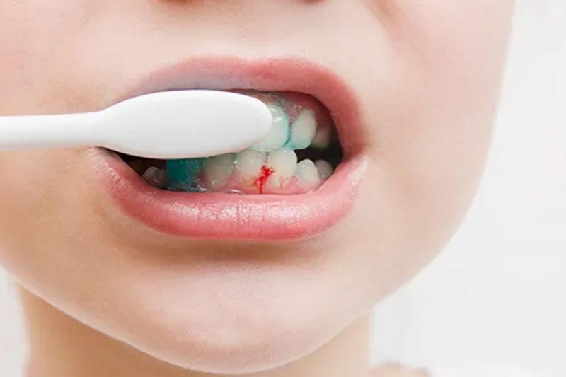 Chải răng nhẹ nhàng cho bé để tránh chảy máu chân răng