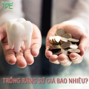 Giá trồng răng sứ cho răng bị mất là bao nhiêu?