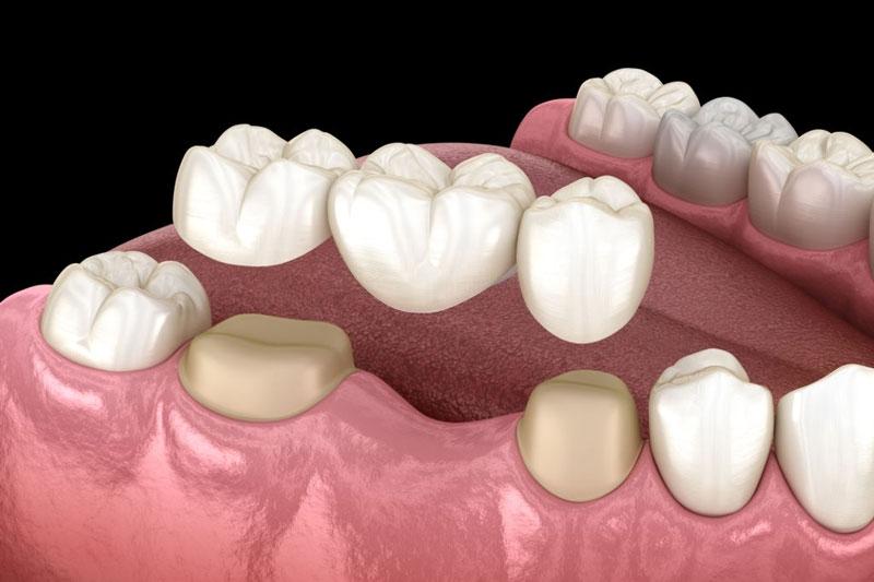 Cầu răng sứ giúp khôi phục khả năng ăn nhai và thẩm mỹ