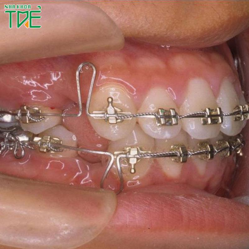 Giai đoạn đóng khoảng trong niềng răng chỉnh nha