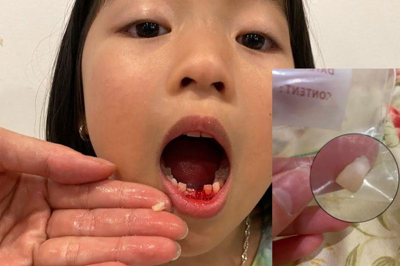 Nhổ răng sữa tại nhà có thể làm chảu máy nghiêm trọng