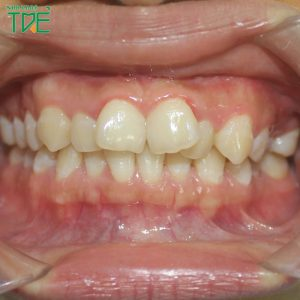 Niềng răng quặp vào trong có được không?