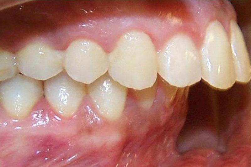 Răng hô hay hàm dưới bị quặp vào trong