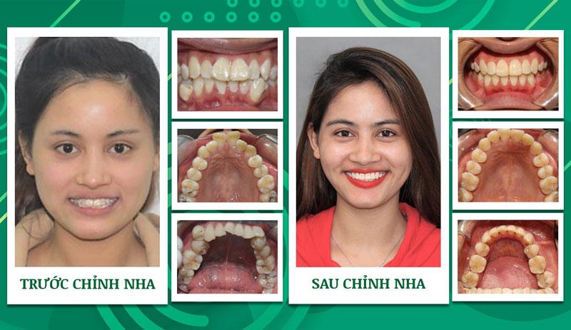 Niềng răng quặp mang lại nụ cười rạng rỡ nhất