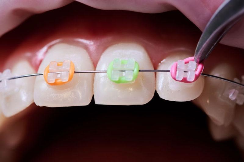 Niềng răng sau 6 tháng cần điều chỉnh sai lệch để đảm bảo kết quả cao