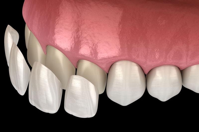 Bọc răng sứ phục hình răng sâu, sứt mẻ để điều trị ê nhức răng