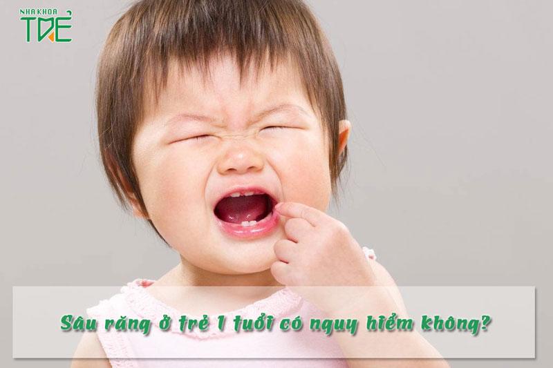 Sâu răng ở trẻ 1 tuổi: Những vấn đề mà bố mẹ cần lưu ý