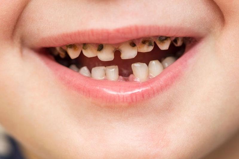 Sâu răng làm mất răng sữa sớm gây ảnh hưởng đến răng vĩnh viễn và cấu trúc hàm