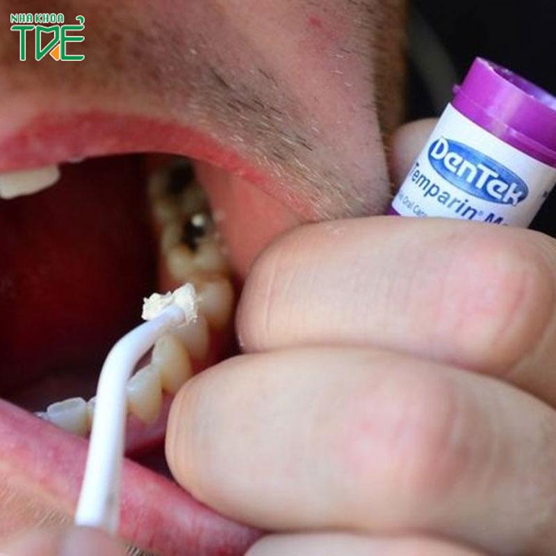Tác hại không ngờ của việc trám răng tại nhà