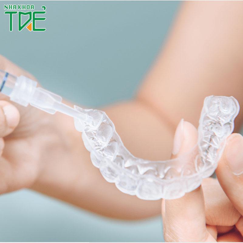 Tẩy trắng răng tại nhà bằng máng có tốt không?