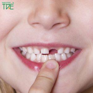 Thay răng cửa ở bé 5 - 6 tuổi diễn ra như thế nào?