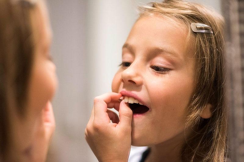 Trẻ thay răng cửa khoảng 5 - 6 tuổi