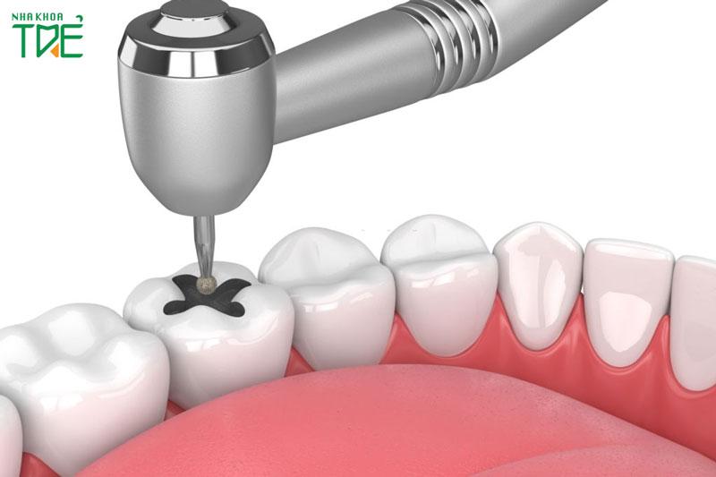 Trám răng giá bao nhiêu?