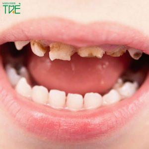 Trẻ em bị sún răng viêm lợi phải làm sao để khắc phục?