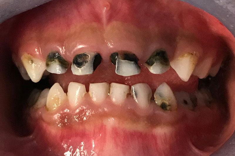 Sún răng nặng có thể gây ra những tổn thương ở nướu lợi