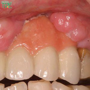 Trồng 3 răng liên tiếp: Phương pháp nào tối ưu nhất?