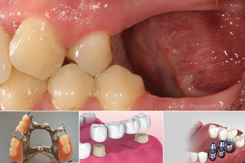 Có 3 phương pháp trồng nhiều răng mất liên tiếp