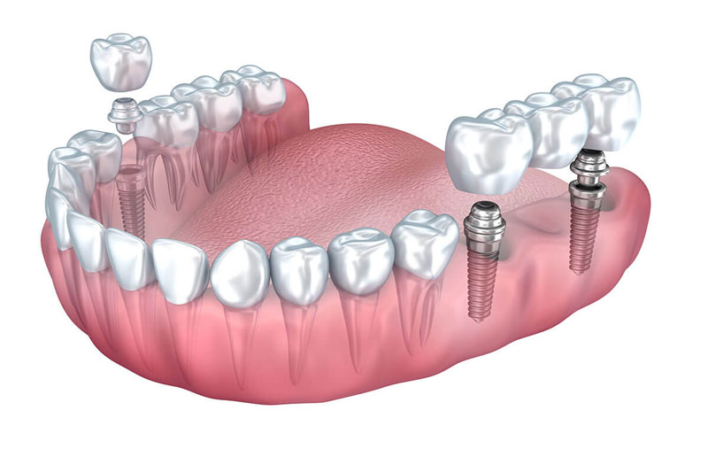 Trồng răng Implant 3 răng liên tiếp đạt kết quả tối ưu