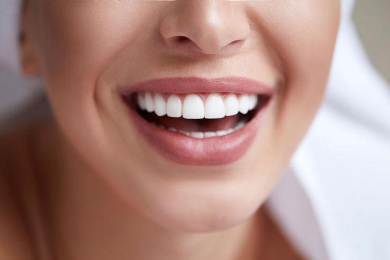 Trồng răng sứ phục hình hàm răng trắng sắng đều đẹp