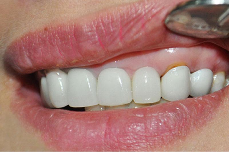 Răng sứ bị hở gây nhồi nhét thức ăn dẫn đến trồng răng sứ bị hôi miệng