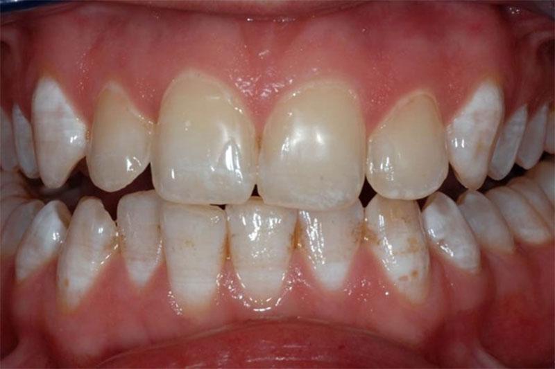 Thừa Fluor khiến răng bị đổi màu, mất thẩm mỹ