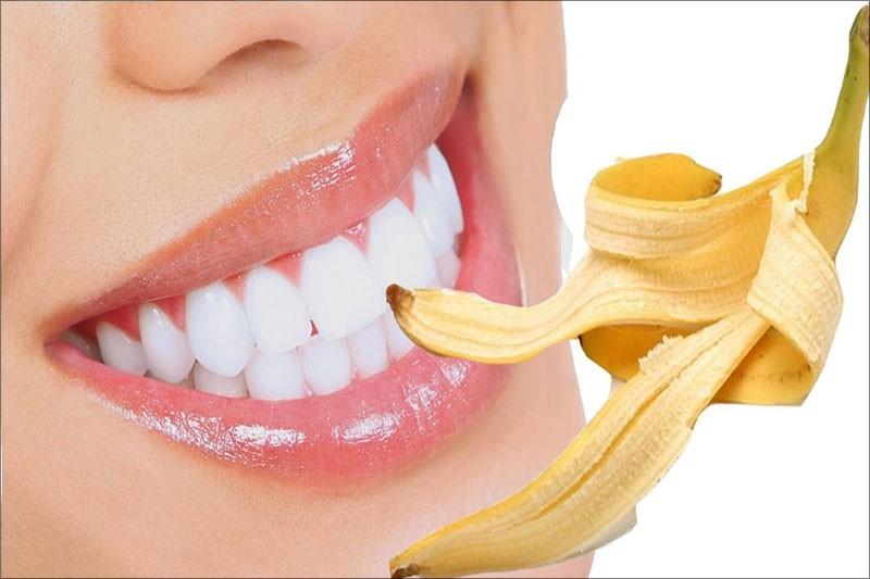 Cách trị răng ố vàng tại nhà bằng vỏ chuối vô cùng hiệu quả