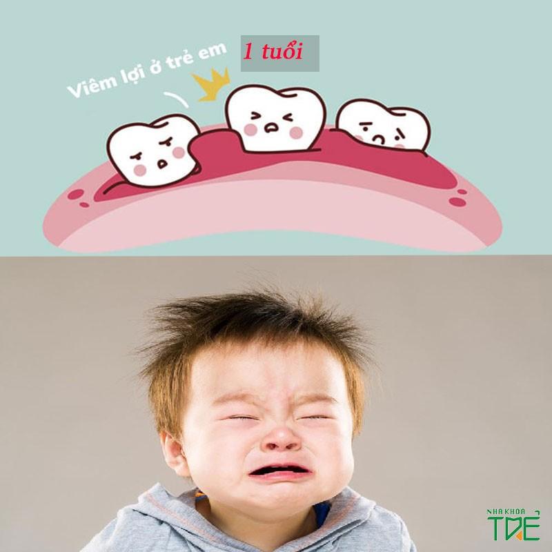 Cách trị viêm lợi ở trẻ em 1 tuổi cha mẹ không nên bỏ qua