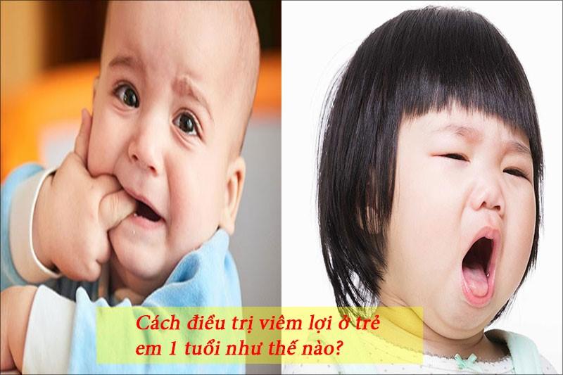 Viêm lợi ở trẻ em 1 tuổi khiến bé khó chịu, quấy khóc