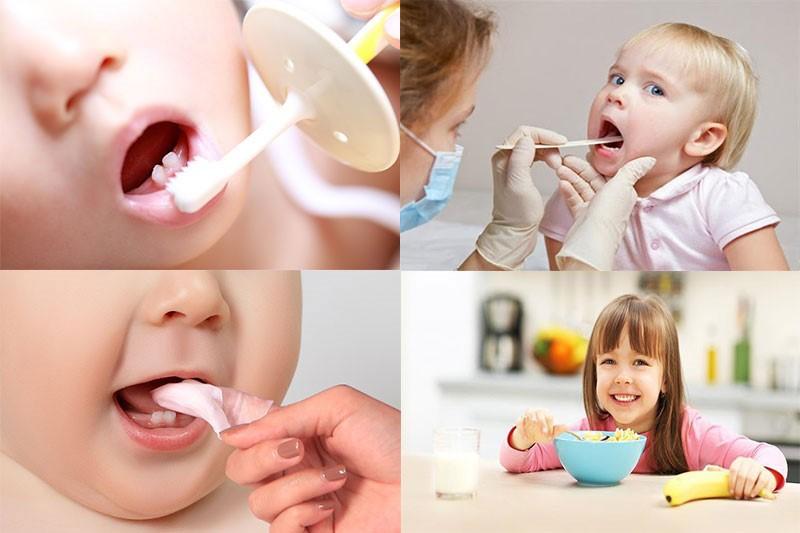 Vệ sinh răng miệng sạch sẽ cho bé giúp giảm tình trạng viêm lợi ở trẻ