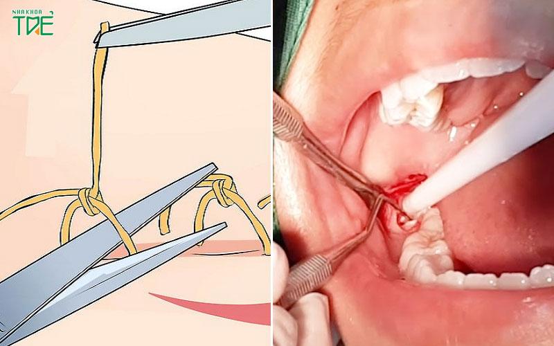 Có bắt buộc phải cắt chỉ sau nhổ răng khôn không? Cắt chỉ có đau không?