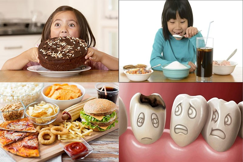 Đồ ăn nhanh, đồ ngọt là nguyên nhân chính gây ra các bệnh răng miệng cho trẻ