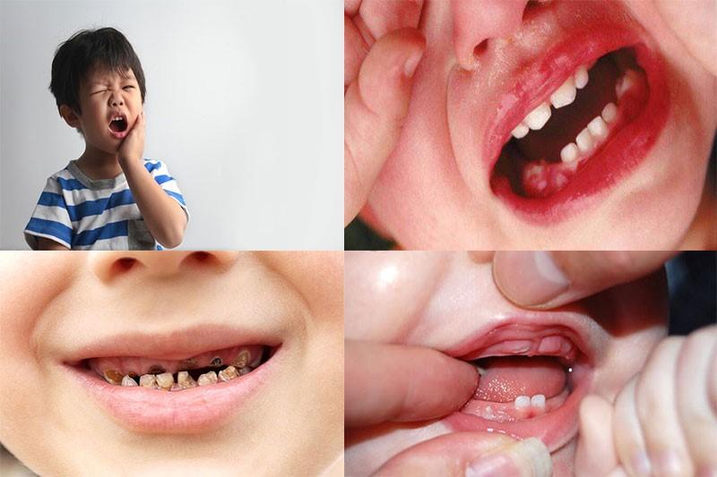 Chăm sóc răng miệng trẻ không cẩn thận gây ra rất nhiều ảnh hưởng nghiêm trọng