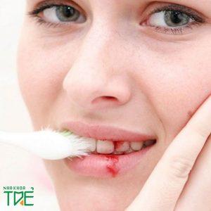 Chảy máu chân răng khi mang thai có nguy hiểm không?